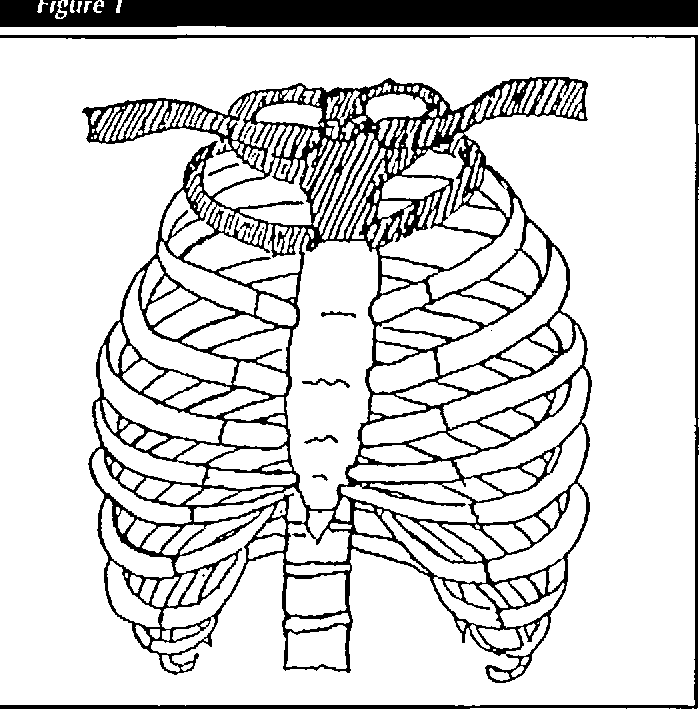 Figure 1 From Sternal Fractures New Perspectives