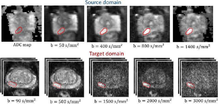 Figure 1 for Unsupervised Domain Adaptation with Semantic Consistency across Heterogeneous Modalities for MRI Prostate Lesion Segmentation