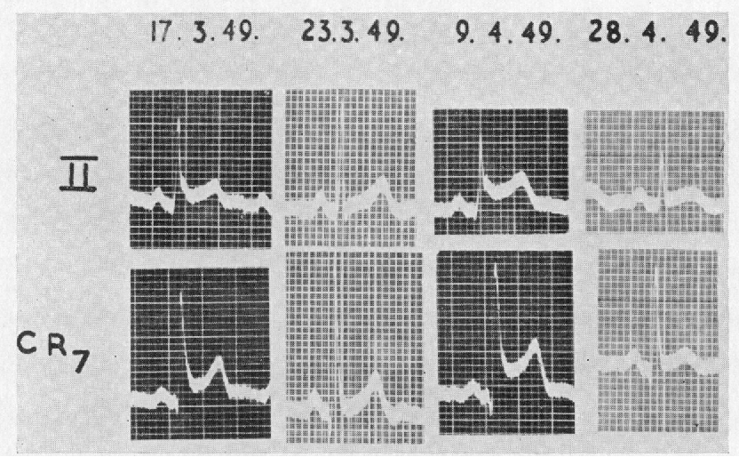 FIG. 1.-Serial cardiograms, showing recurrent patterns of acute pericarditis.
