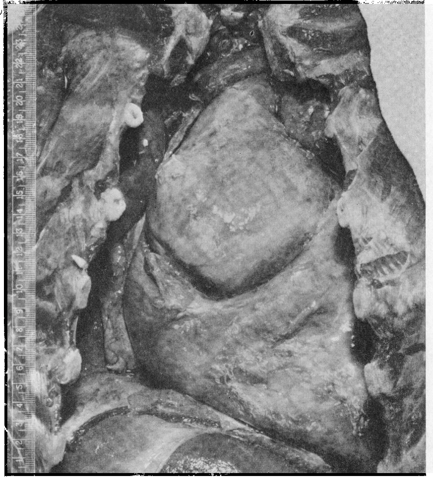 FIG. 3.-Photograph of the heart at necropsy, showing aneurysm of the ascending aorta.