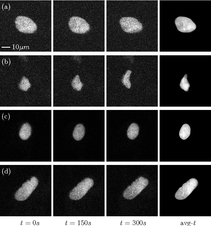 Figure 2 for Automated Image Processing for the Analysis of DNA Repair Dynamics