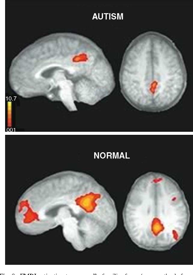 In Autism Brain Shows Unusual Thinning >> Figure 8 From Brain Overgrowth In Autism During A Critical Time In