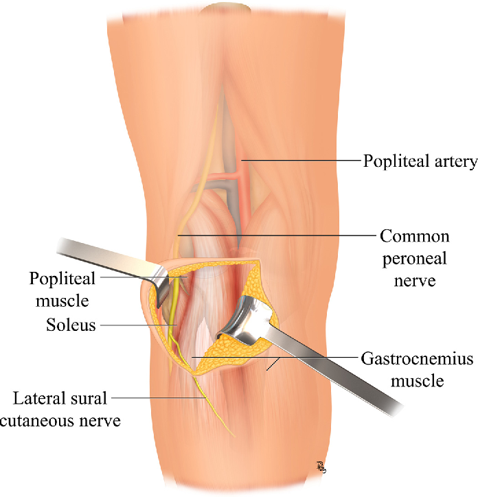 A combined approach for the treatment of lateral and posterolateral ...