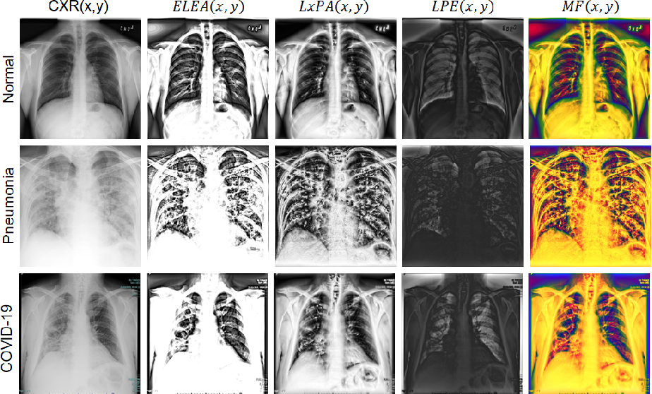 Figure 2 for Chest X-ray Image Phase Features for Improved Diagnosis of COVID-19 Using Convolutional Neural Network