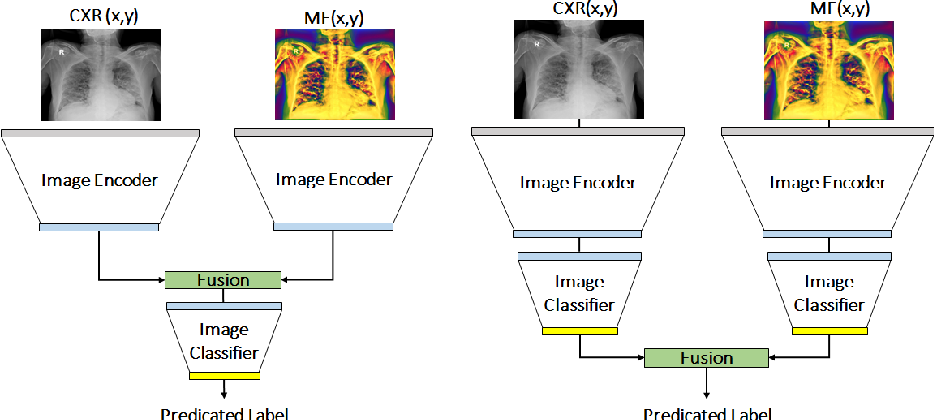 Figure 4 for Chest X-ray Image Phase Features for Improved Diagnosis of COVID-19 Using Convolutional Neural Network