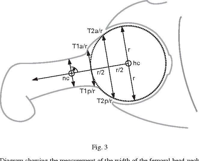 Figure 3 From The Contour Of The Femoral Head Neck Junction As A