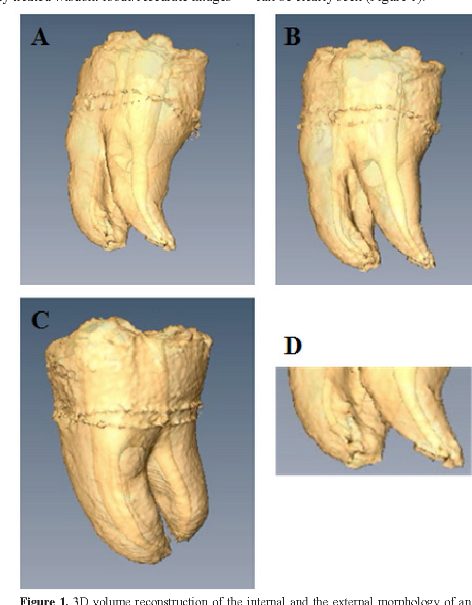 Human tooth and root canal morphology reconstruction using magnetic ...