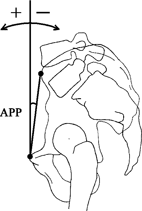 Fig. 1 Measurement of the anterior pelvic plane (APP). APP is the angle formed by a vertical line drawn from the symphysis pubis and the mid-point between the two anterior superior iliac spines