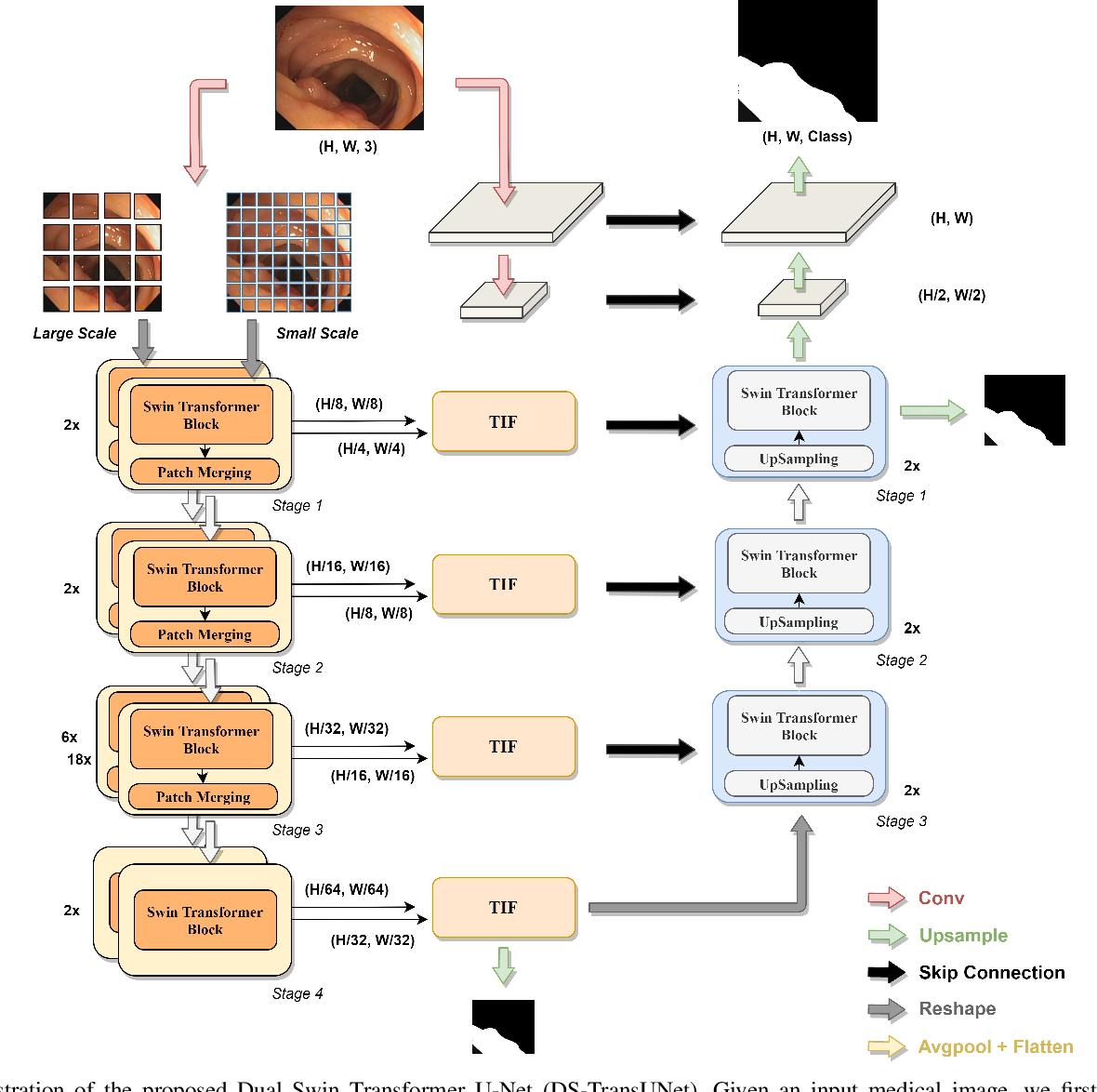 Figure 2 for DS-TransUNet:Dual Swin Transformer U-Net for Medical Image Segmentation