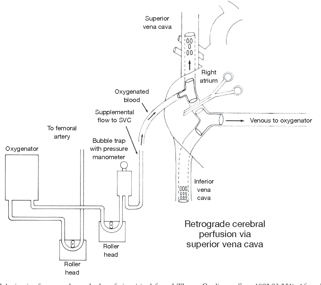 Figure 1 from A reappraisal of retrograde cerebral perfusion ...