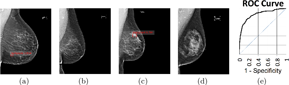 Figure 3 for Large-scale mammography CAD with Deformable Conv-Nets