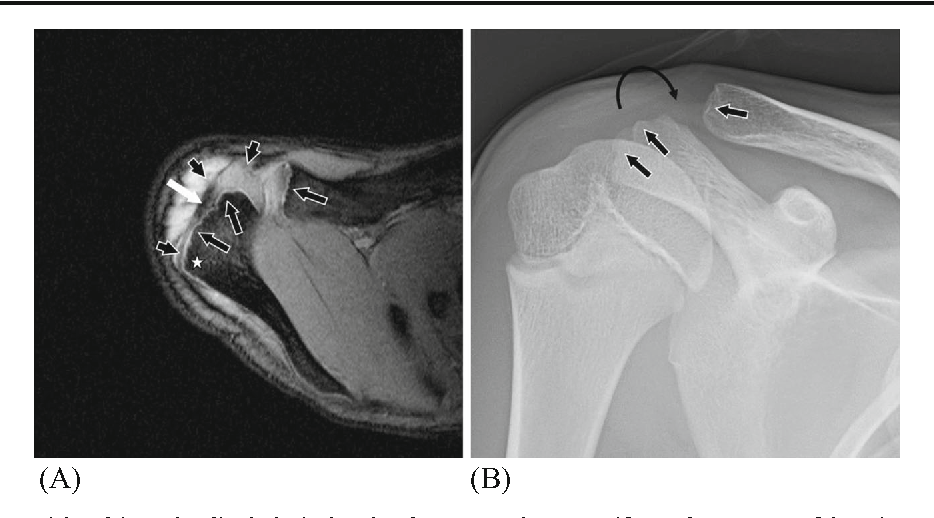 Skeletal Developmental Patterns In The Acromial Process And Distal
