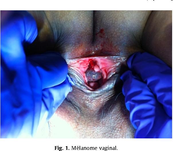 Vaginal malignant melanoma