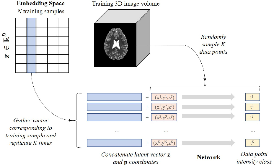 Figure 1 for Implicit field learning for unsupervised anomaly detection in medical images