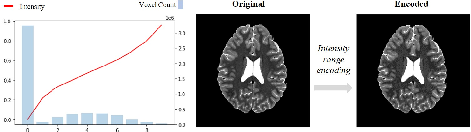 Figure 3 for Implicit field learning for unsupervised anomaly detection in medical images