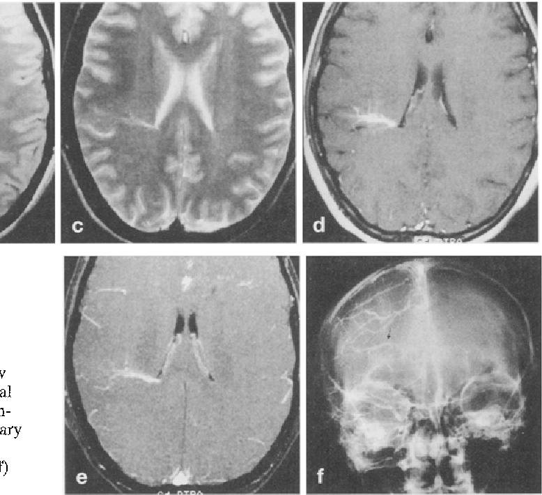 Venous angiomas: plain and contrast-enhanced MRI and MR angiography ...