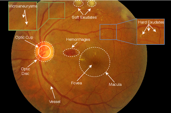 Figure 1 for Applications of Deep Learning in Fundus Images: A Review