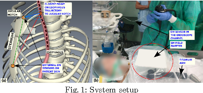 Figure 1 for Automatic View-Point Selection for Inter-Operative Endoscopic Surveillance