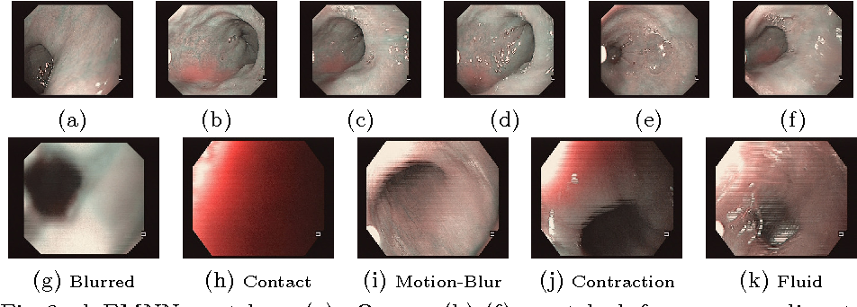 Figure 3 for Automatic View-Point Selection for Inter-Operative Endoscopic Surveillance