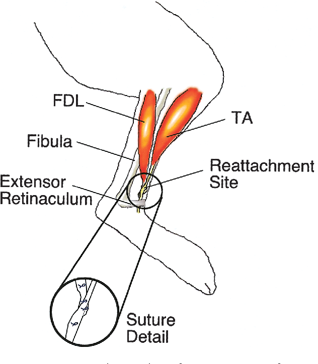 effect of muscle tension during tendon transfer on sar erogenesis Chart of Sarcomere effect of muscle tension during tendon transfer on sar erogenesis in a rabbit model semantic scholar
