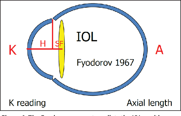 Figure 1. The Fyodorov concept predicts the IOL position as a function of the corneal height (H), which is calculated from the corneal curvature and diameter. This model is used by