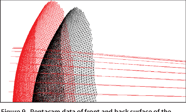 Figure 9. Pentacam data of front and back surface of the cornea transformed into a polygonal shape and imported by the Zemax software. The individual measurements can be