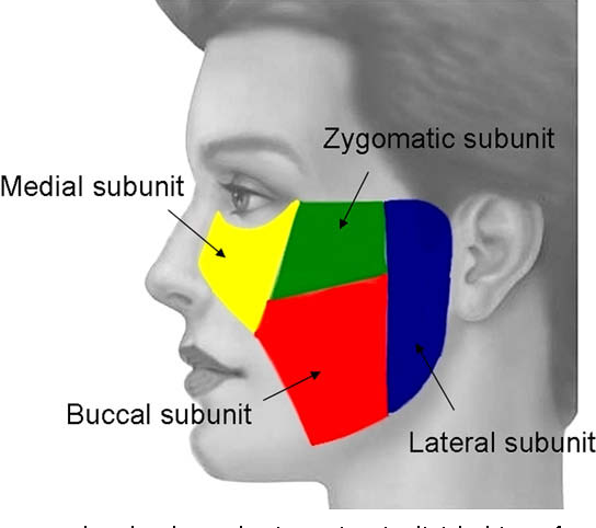 Figure 2 from Cheek defects. - Semantic Scholar