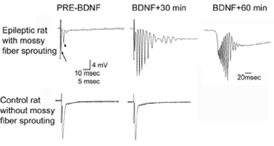 Figure 5. Effects of BDNF in an animal with chronic seizures (i.e., epileptic) and mossy fiber sprouting. Stimulation of the hilus to activate mossy fibers in an epileptic rat with mossy fiber sprouting (Top) evoked an antidromic population spike (arrow) followed by an orthodromic population spike (arrowhead). After BDNF was added to the buffer, the same stimulus evoked multiple population spikes (Top, center) and subsequently spontaneous population spike occur in bursts (Top, right). In contrast, only an antidromic spike was evoked by hilar stimulation in a slice from a control rat without sprouting (Bottom), even after supramaximal stimuli, and even after prolonged exposure to BDNF. No spontaneous activity occurred. Calibration for recordings from epileptic tissue, 10 msec; for control recordings, 5 msec (Scharfman et al., 1999).