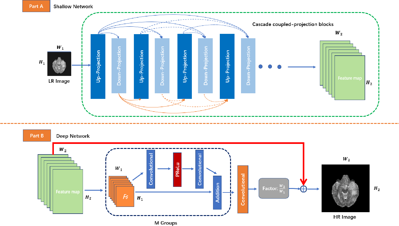 Figure 1 for Coupled-Projection Residual Network for MRI Super-Resolution