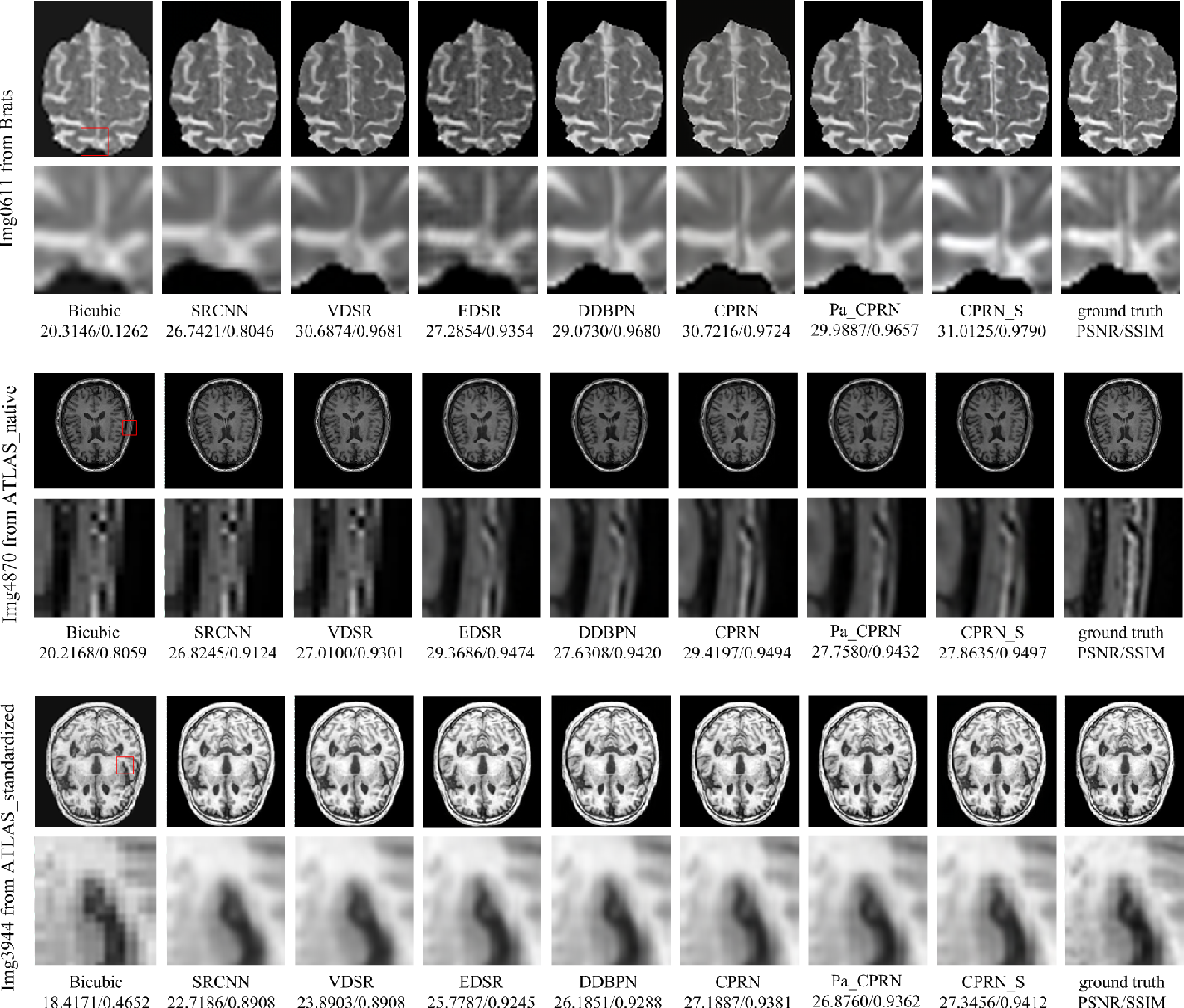 Figure 4 for Coupled-Projection Residual Network for MRI Super-Resolution