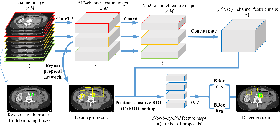 Figure 1 for 3D Context Enhanced Region-based Convolutional Neural Network for End-to-End Lesion Detection