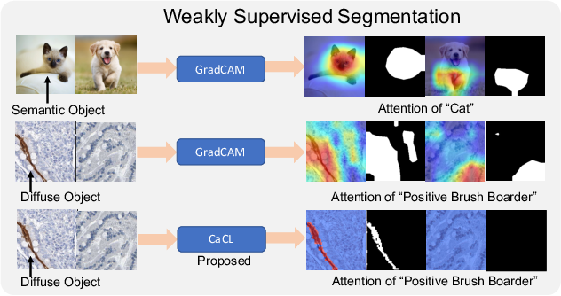 Figure 1 for CaCL: Class-aware Codebook Learning for Weakly Supervised Segmentation on Diffuse Image Patterns