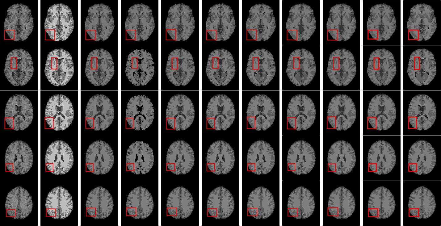 Figure 2 for Kullback-Leibler Divergence-Based Fuzzy $C$-Means Clustering Incorporating Morphological Reconstruction and Wavelet Frames for Image Segmentation