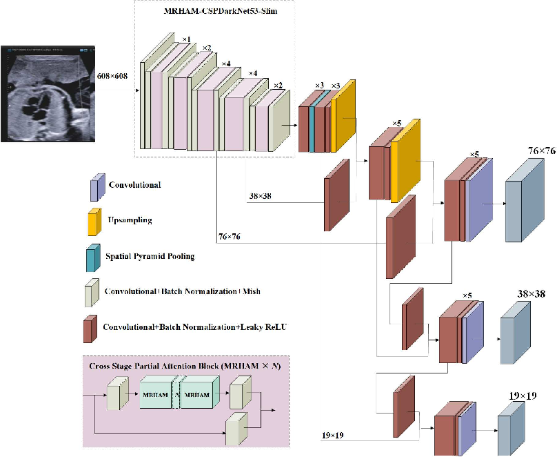 Figure 2 for Automatic Detection of Cardiac Chambers Using an Attention-based YOLOv4 Framework from Four-chamber View of Fetal Echocardiography