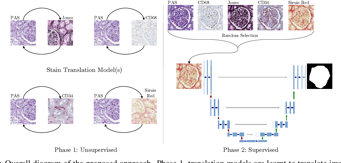 Figure 3 for Towards Histopathological Stain Invariance by Unsupervised Domain Augmentation using Generative Adversarial Networks