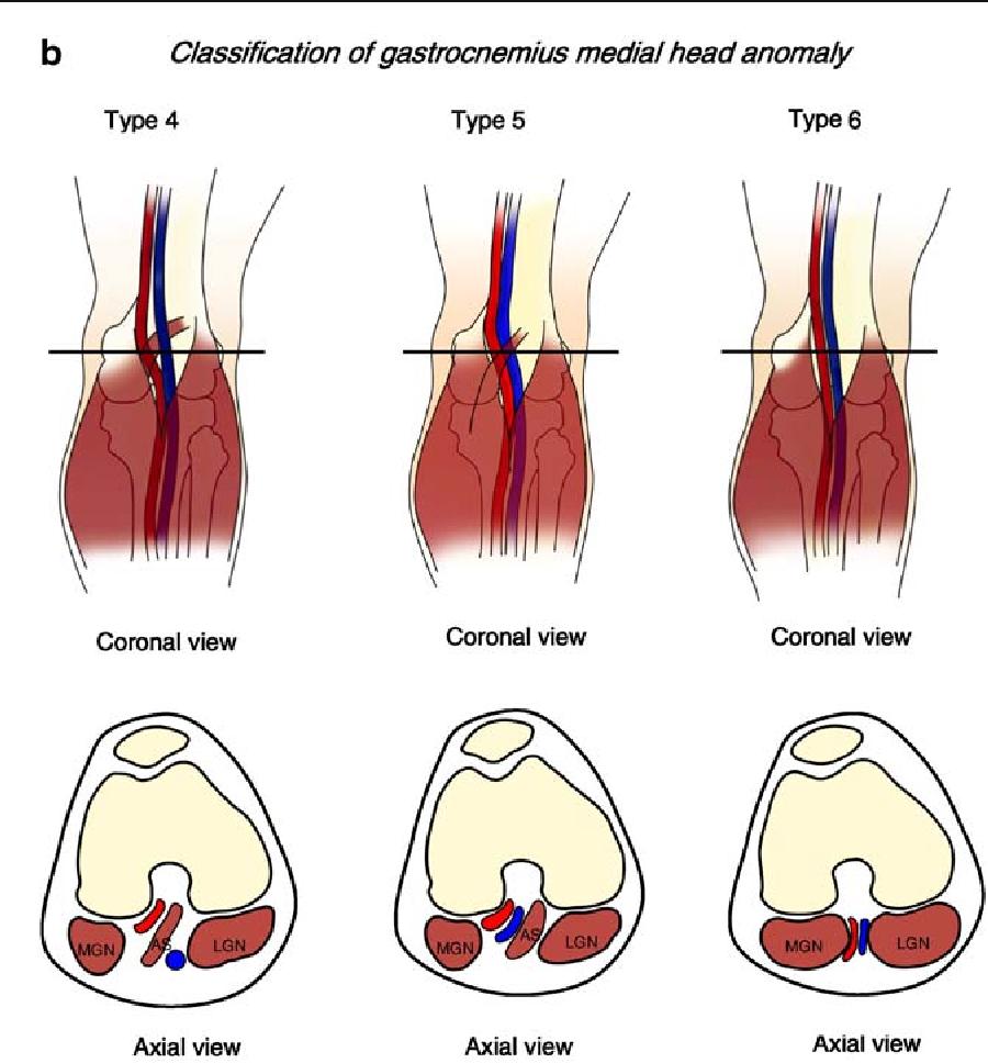 Popliteal artery entrapment syndrome: morphological classification ...