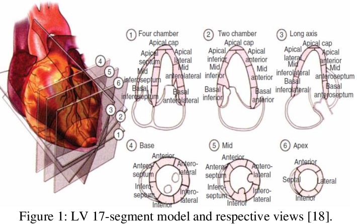 Figure 1 for Left Ventricular Wall Motion Estimation by Active Polynomials for Acute Myocardial Infarction Detection