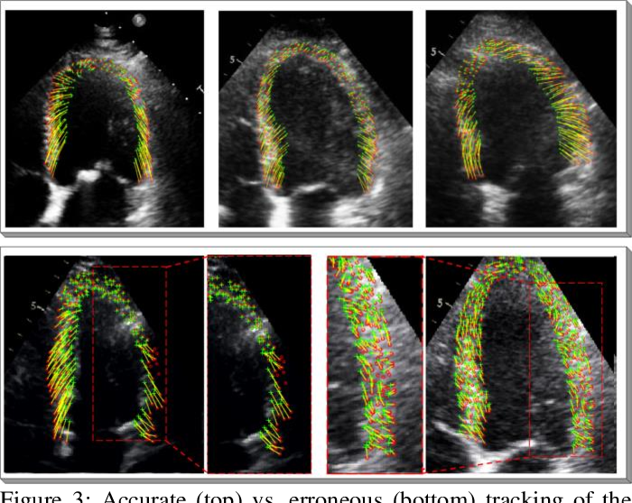 Figure 4 for Left Ventricular Wall Motion Estimation by Active Polynomials for Acute Myocardial Infarction Detection
