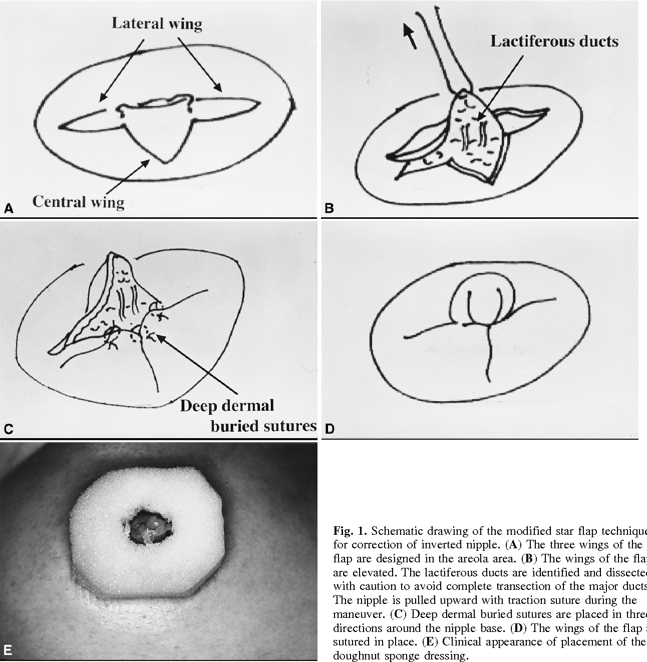 Correction Of Inverted Nipple With Modified Star Flap Technique