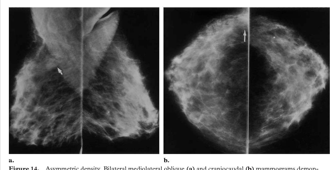 Figure 14 from Missed breast carcinoma: pitfalls and pearls
