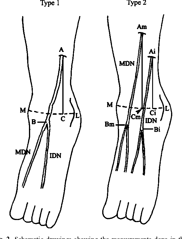 Anatomy of the superficial peroneal nerve related to the harvesting ...