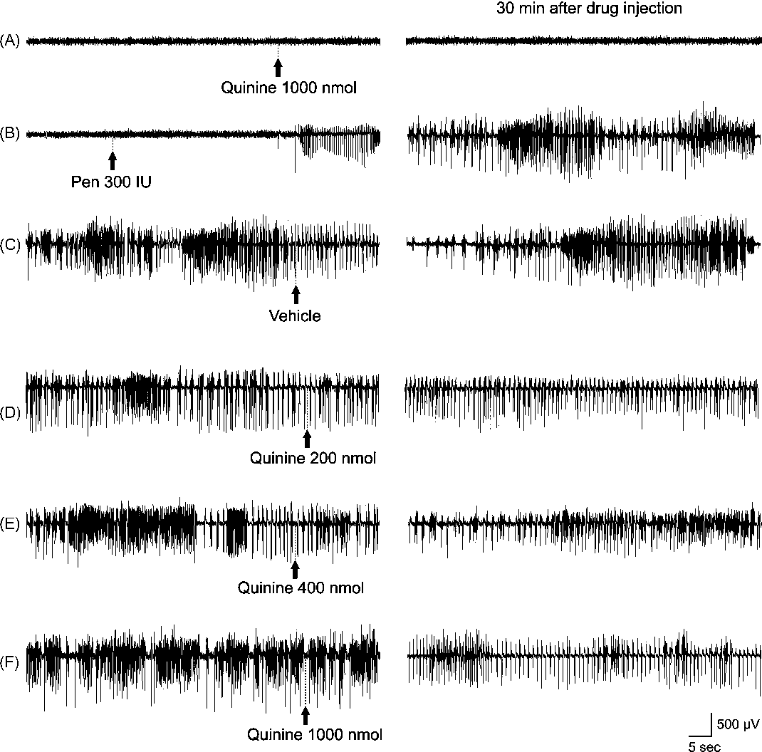 Figure 1 The effects of drugs on brain activity. EEG samples on the left represent brain activity prior to drug application while those on the right show brain activity 30 min after drug administration. Intracerebroventricular injection of 1000 nmol quinine did not change baseline brain activity (A). Injection of penicillin (300 IU) into brain ventricle induces an epileptiform EEG activity characterized by biphasic spikes and spike-wave complexes (B). Vehicle solution did not change severity of epileptiform activity (C). Administration of 200 (D), 400 (E) and 1000 nmol (F) quinine significantly decrease the frequency and amplitude of epileptiform activity. Pen, penicillin.