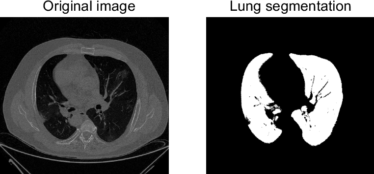 Figure 3 for Probabilistic combination of eigenlungs-based classifiers for COVID-19 diagnosis in chest CT images