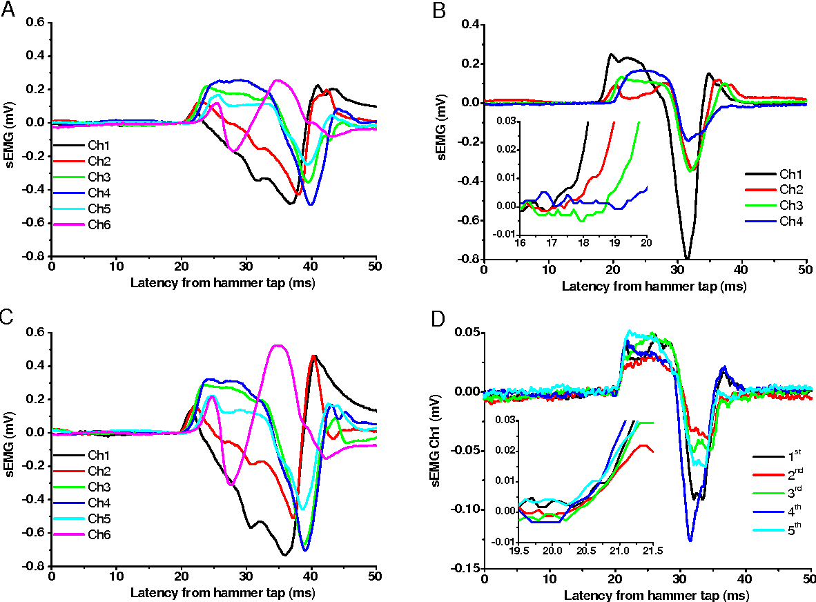 Figure 2 from Females recruit faster alpha motor neurons than males