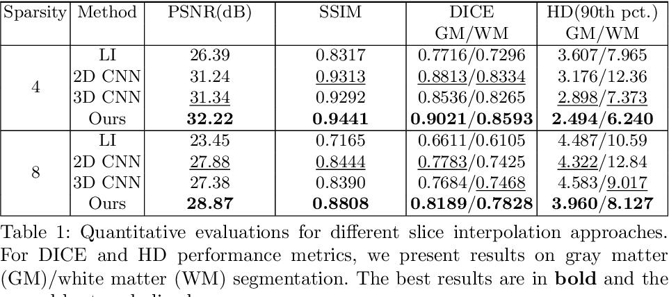 Figure 2 for Deep Slice Interpolation via Marginal Super-Resolution, Fusion and Refinement