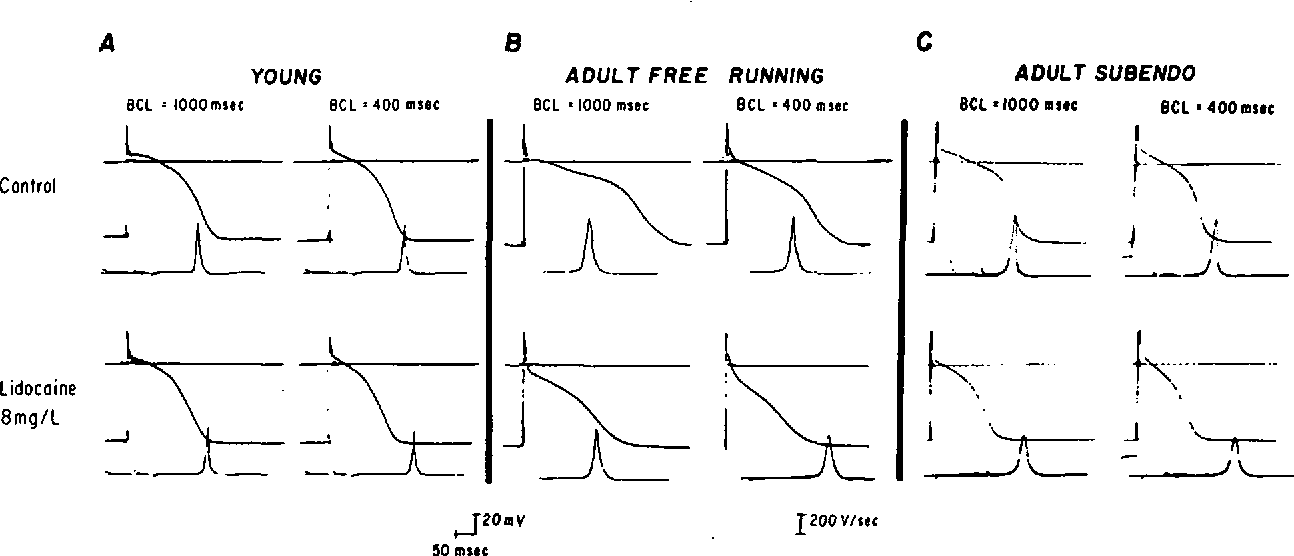 "FIGURE 1. Effect of lidocaine (8 mg/liter) on young (panel A) and adult (panel B) free-running and subendocardial (panel Q Purkinje fiber action potentials at BCL = 1000 msec and 400 msec. In all panels, the upper traces show a ""0"" line and the transmembrane action potential: the lower traces show the electronically differentiated Vma of phase 0 (the latter retouched for the sake of clarity). Control action potentials in the freerunning fibers from the young dog (panel A) and the subendocardial fiber from the adult dog (panel Q have shorter action potential durations than the free-running adult fiber (panel B). The effect of lidocaine on action potential duration is greater in the adult free-running fiber than in the adult subendocardial and young fibers at both BCL V^ of the young fiber during control is slightly less than that of both adult fibers. In the presence of lidocaine, there is a greater reduction of Vma in the adult fibers."