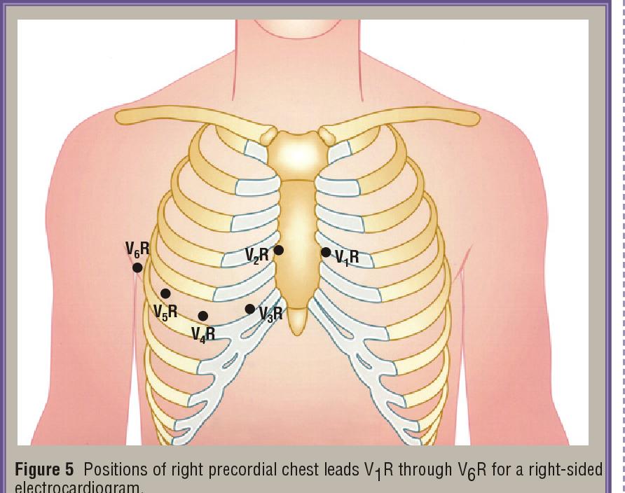 Right coronary artery Right ventricle branch Left coronary artery ...