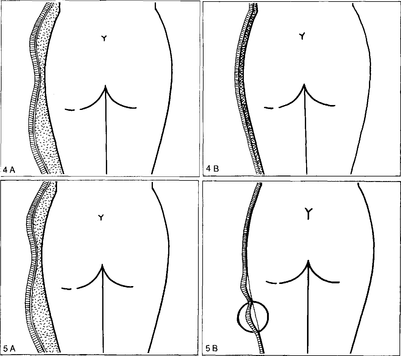 Rationale of subdermal superficial liposuction related to the ...