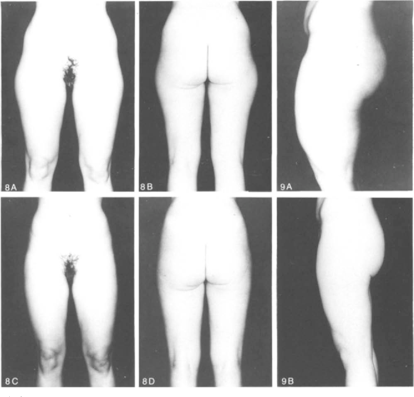 Rationale Of Subdermal Superficial Liposuction Related To The
