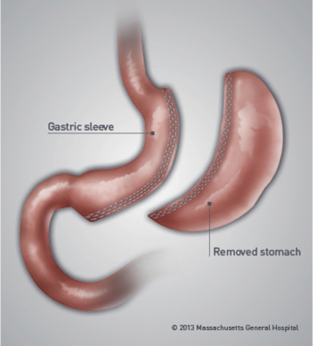 Metabolic and bariatric surgery: Nutrition and dental